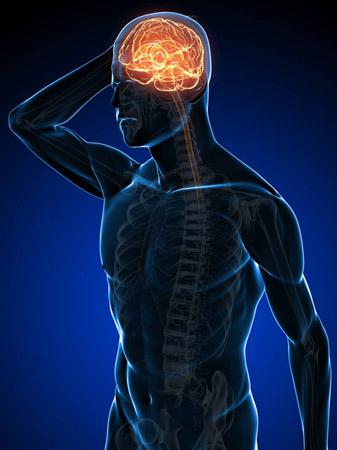 occipital headache treatment