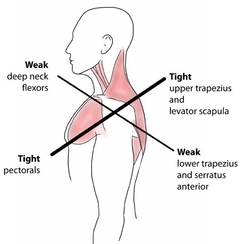 upper cross syndrome poor posture